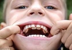2重に生えた歯