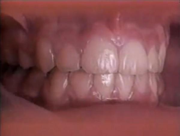【動画】歯列矯正器具の効果を60秒で体感する動画
