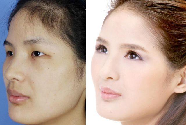 中国人の美容整形ビフォーアフター