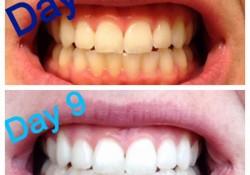 虫歯を治して歯を白くする上に他にも効果のある万能薬ココナッツオイル!