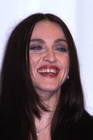 【画像】歯をお直ししたセレブのビフォーアフター マドンナ