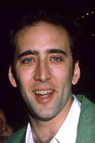 【画像】歯をお直ししたセレブのビフォーアフター ニコラス・ケイジ