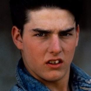 【画像】歯をお直ししたセレブのビフォーアフター トム・クルーズ