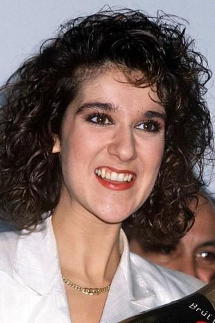 【画像】歯をお直ししたセレブのビフォーアフター セリーヌ・ディオン
