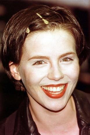 【画像】歯をお直ししたセレブのビフォーアフター ケイト・ベッキンセール