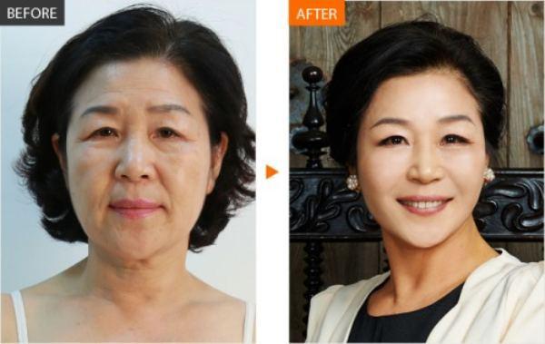 韓国の美容整形ビフォーアフター