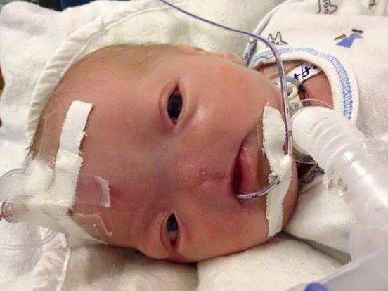 【米国】鼻を持たずに生まれてきた赤ちゃん